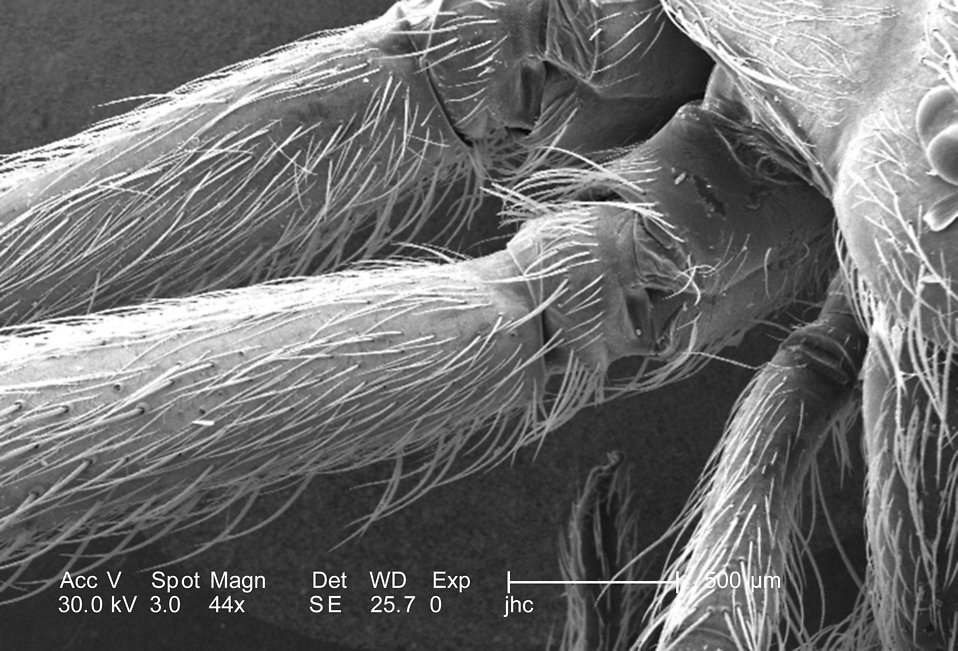 Scanning electron micrograph of a brown recluse spider. : Free Stock Photo