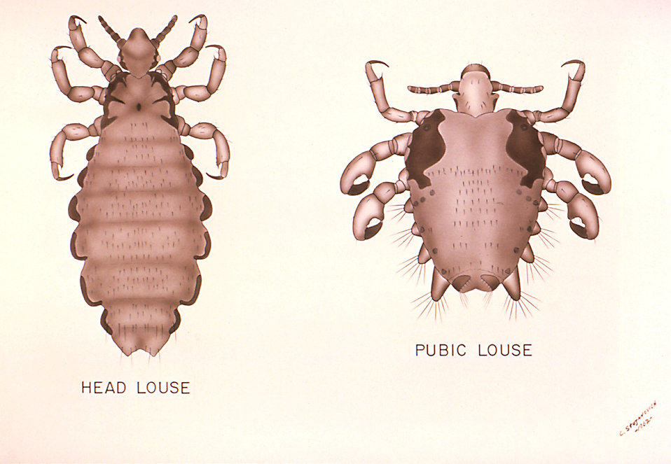 Illustrations comparing the Head Louse with the Pubic Louse : Free Stock Photo