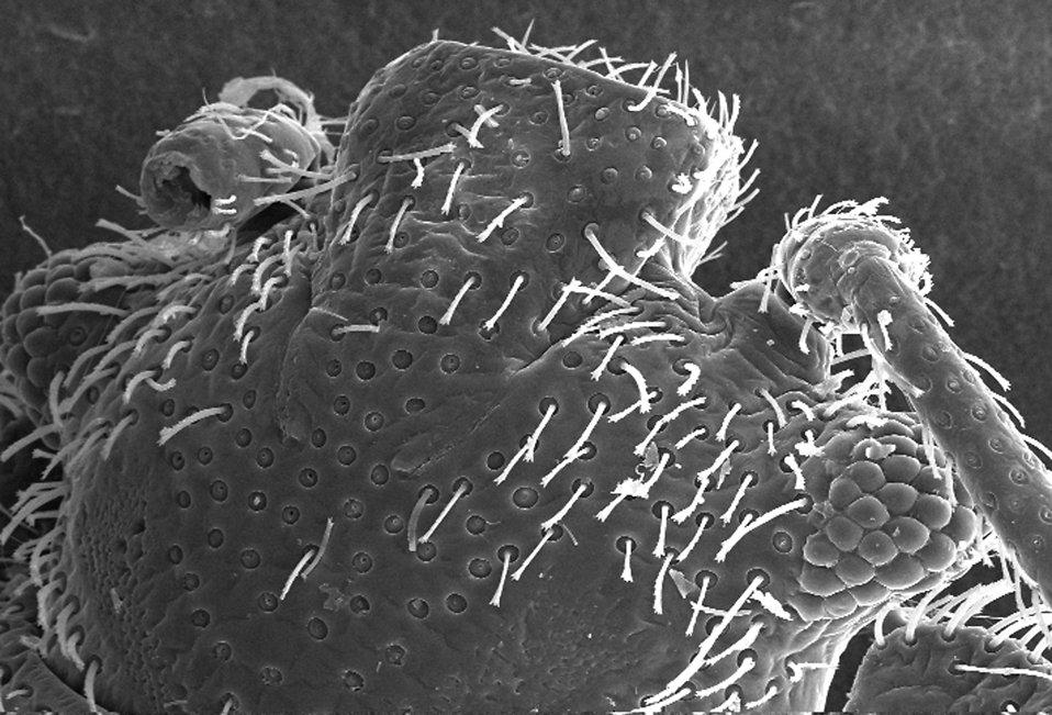Microscopic bedbug scanning electron micrograph. : Free Stock Photo