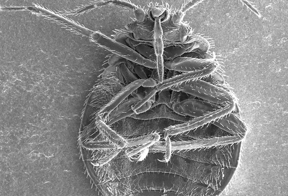 Microscopic bedbug scanning electron micrograph. : Free Stock Photo