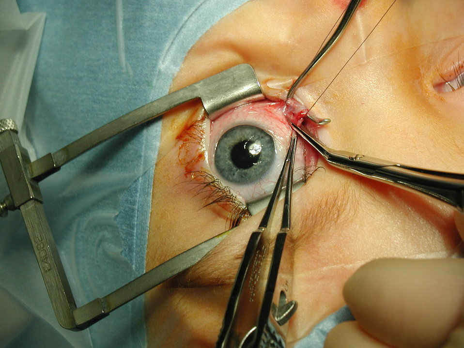 Closeup of eye surgery : Free Stock Photo