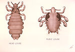 Free Stock Photo: Illustrations comparing the Head Louse with the Pubic Louse